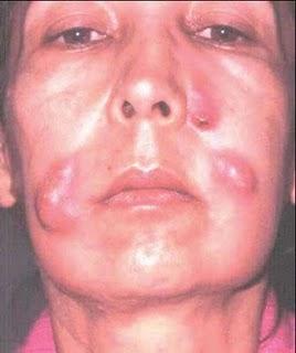 riesgos de inyectarse anabolicos